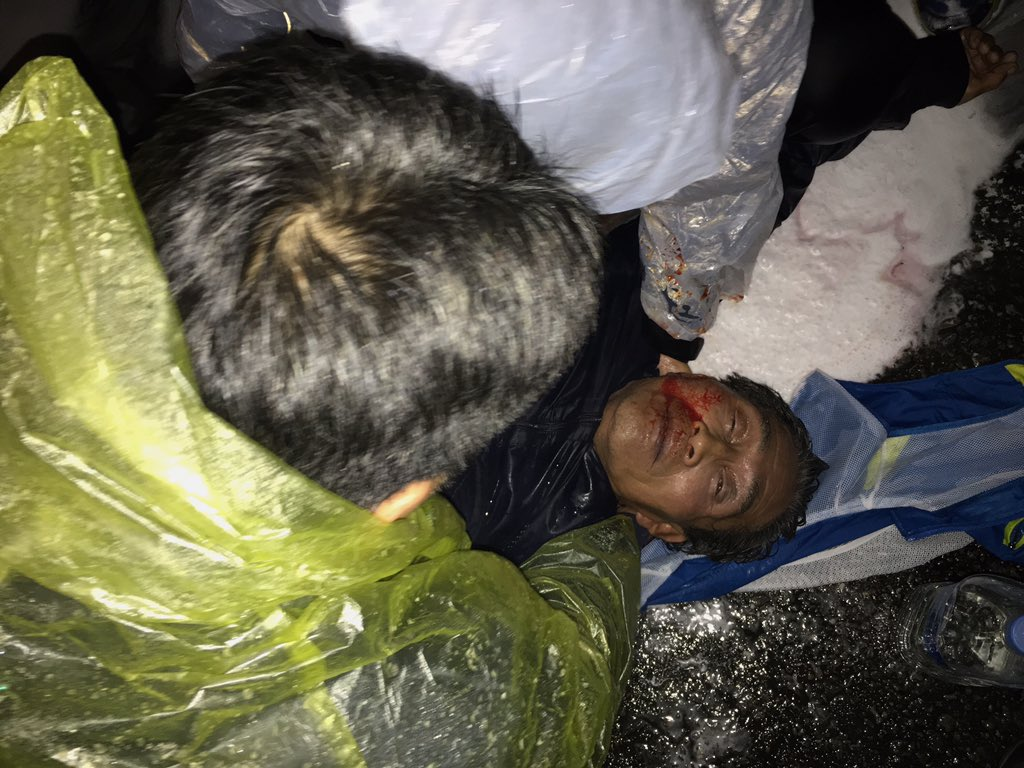 속보,  충격, 경찰의 체류액 섞인 물대포 직사로 보성군 농민 백 씨의 생명이 위급하다고 담당의사가 통보 했다고 합니다. https://t.co/pS5ii7RkKr
