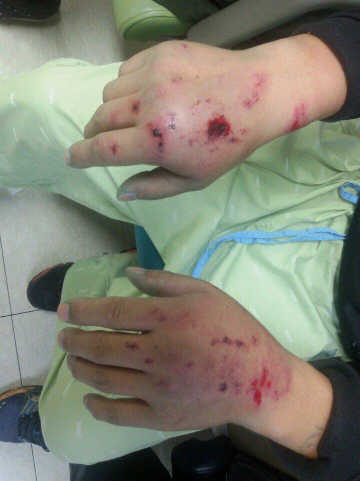 화물연대 대구경북지부에서 집회에 참여한 한 노동자는 손등과 허벅지에 물대포를 정면으로 맞았습니다. 붉은 피멍과 파란 물감 흔적이 남았습니다. #시사IN https://t.co/OPWn4MB1Qe