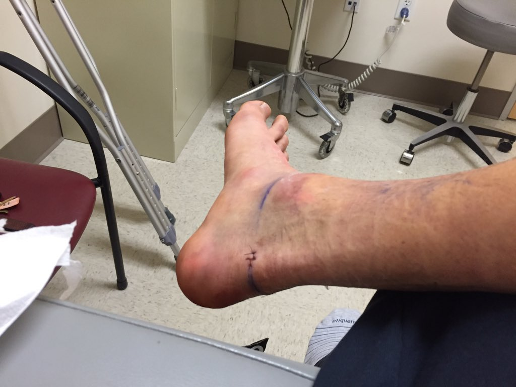 Robbie Rogers On Twitter Alfiebakerstyle Troll Feet I Ll Make