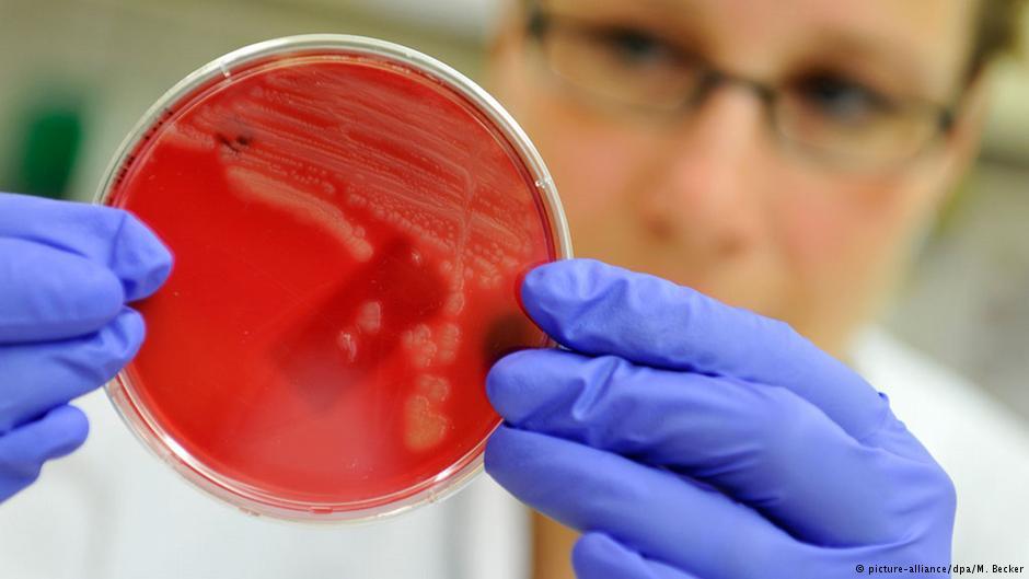 Salute News: Lo scenario inquietante del gene MCR-1 scoperto in Cina
