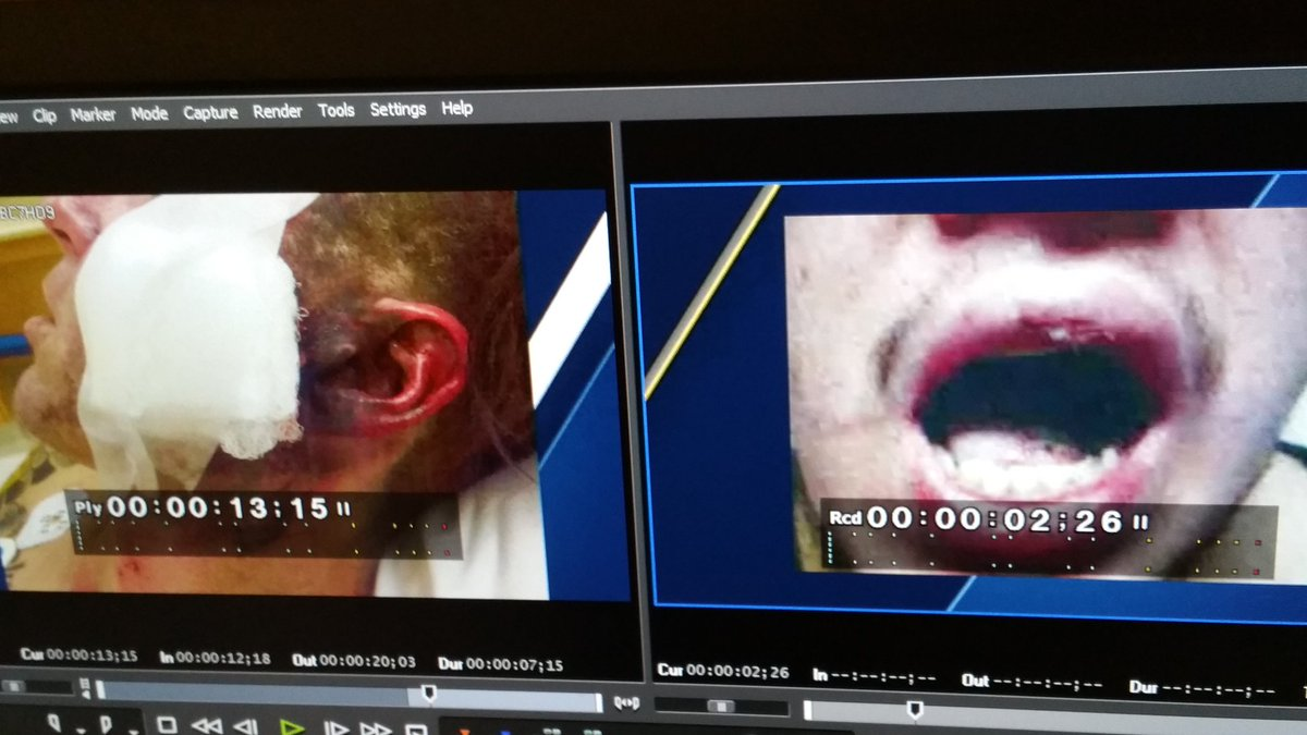 Losing fingers, tongues, burns, torn lips. R e-cigarettes too dangerou...