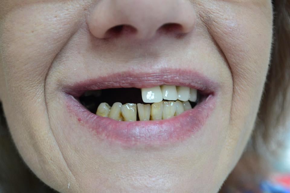удалили передние зубы как ходить на работу