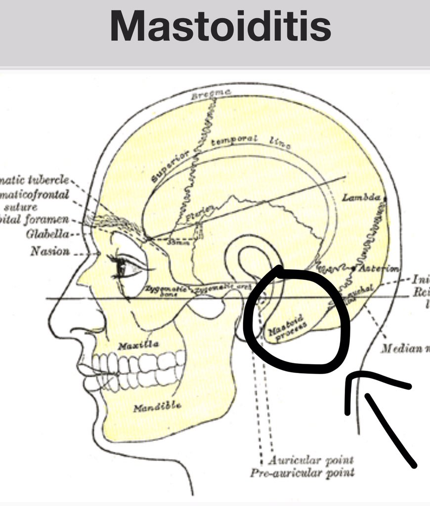 Magnificent Mastoid Bone Ear Component - Physiology Of Human Body ...