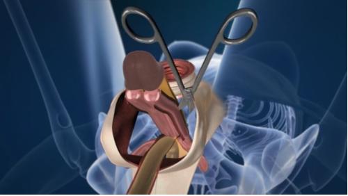 Dette er, hvordan læger Drej en penis ind i en Vagina Scoopnest-6917