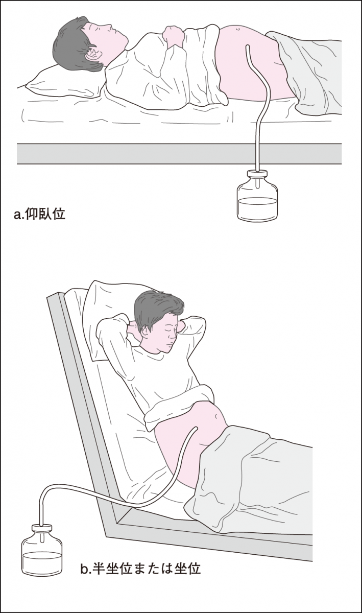 """看護roo!公式(かんごるー) ar Twitter: """"腹腔穿刺のキホンと、穿刺に ..."""