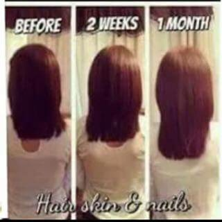 Juiceplus Hair Hairgrowth Growth Berrycapsules Berry Cap Twitter Kqa1fkoxf0