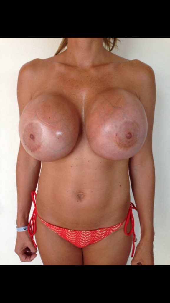 Hot girls breast implants milf lessons