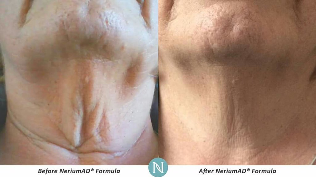 90 DAY REAL RESULTS! #Nerium Look young #YudiPedraza https://t.co/c2ab02R9pn https://t.co/LnVoc6ibum