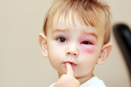 Cara Mengatasi Sengatan Lebah Atau Tawon Pada Anak Kecil - AnekaNews.net
