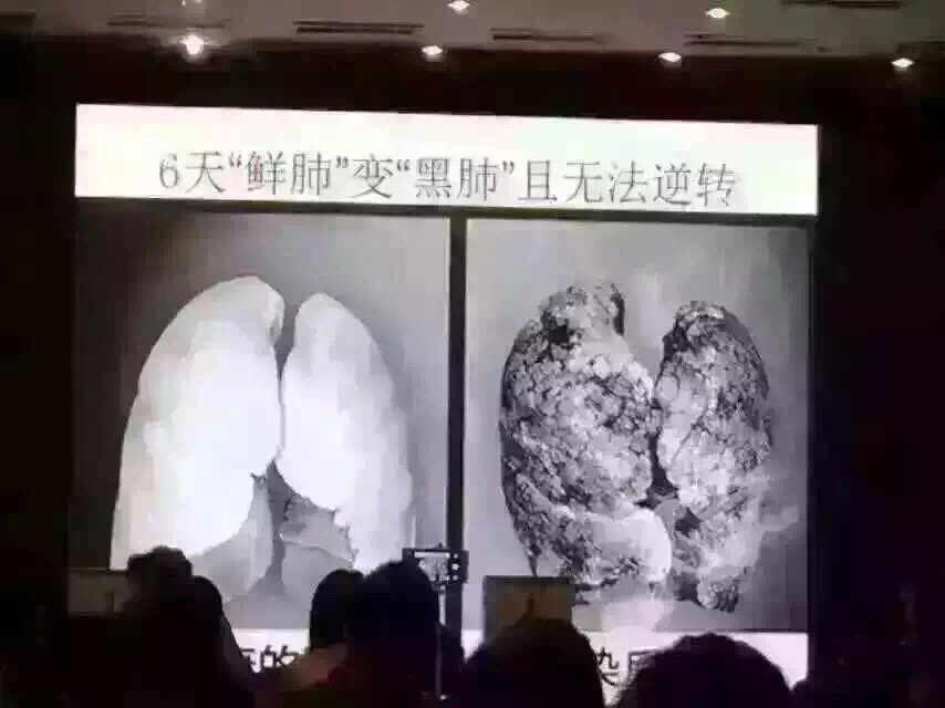 Experiment by Fudan University: lungs of mice after 6 days exposure to smog https://t.co/0UAmZMAovP