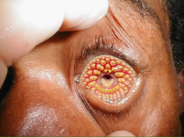 T2 0 On Twitter Trypophobia This Stuff Makes My Skin Crawl
