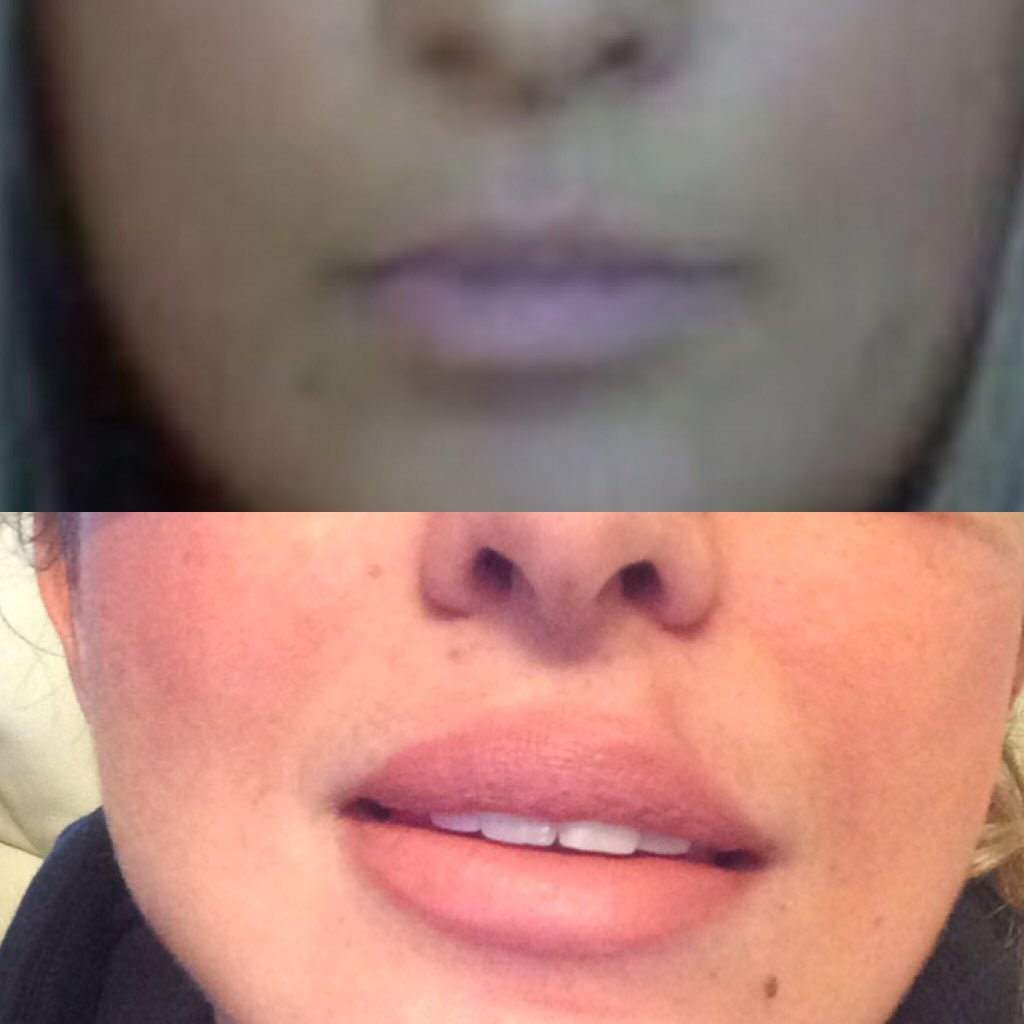 lip fillers age