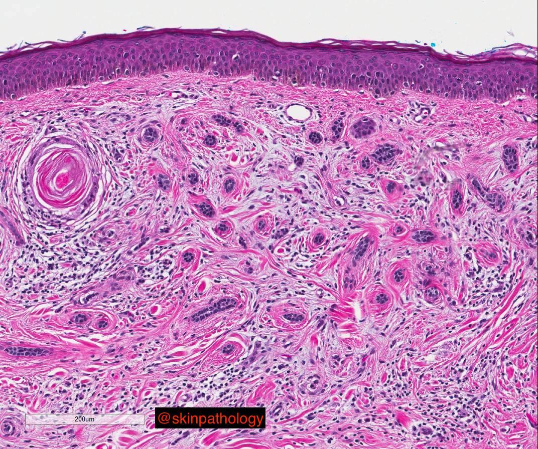 Desmoplastic Trichoepithelioma