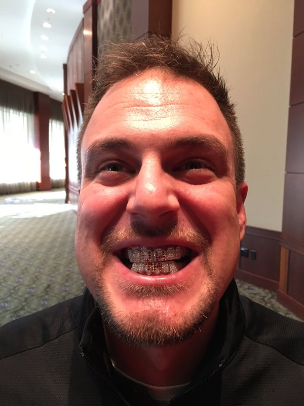 Houston's @CoachTomHerman got his grill today. Icy. https://t.co/SrI73p2GVc