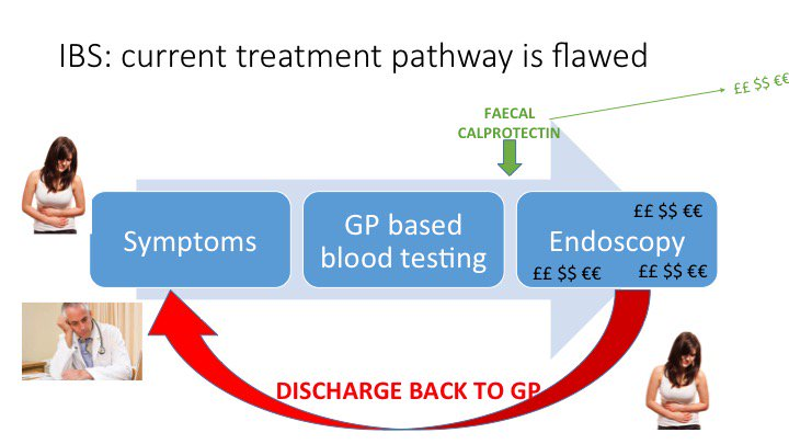 There is a disconnect between 1ry & 2ry care in terms of IBS. GPs see expensive procedures and no pt care #FGDebate https://t.co/v56C9hGhxC