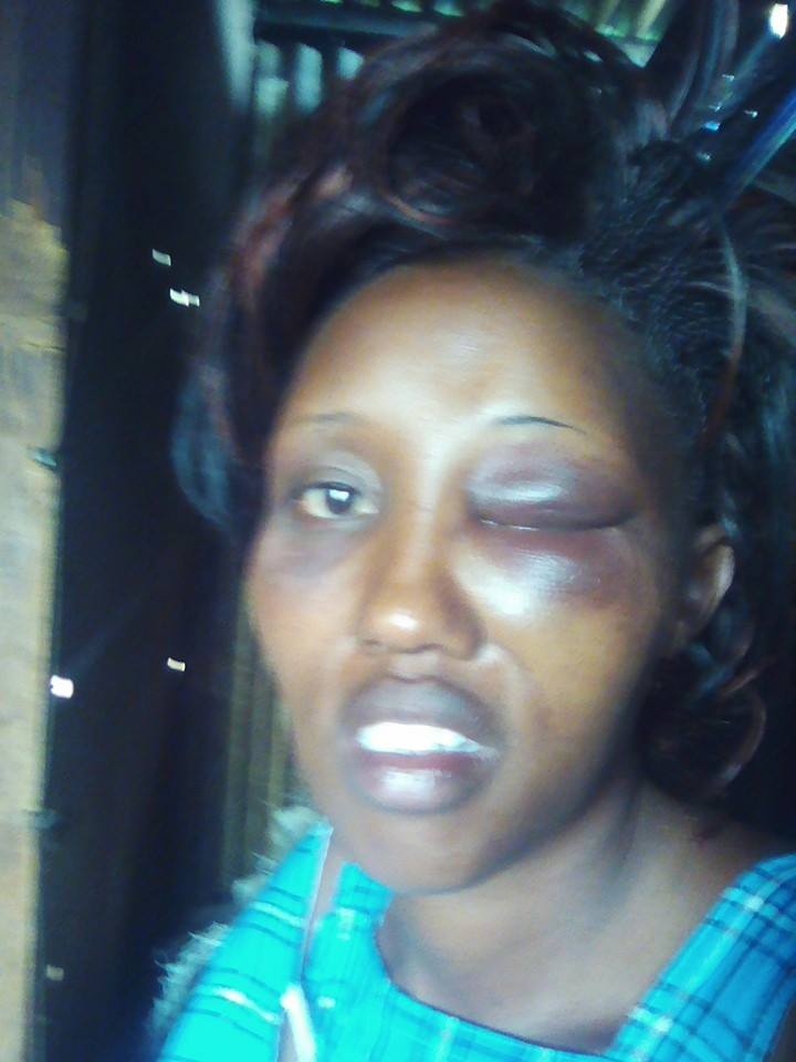 The brutality meted out on Eunice Leshunet by her husband for declaring her interest to contest as Senator in 2017 https://t.co/qLJm4k2fjj