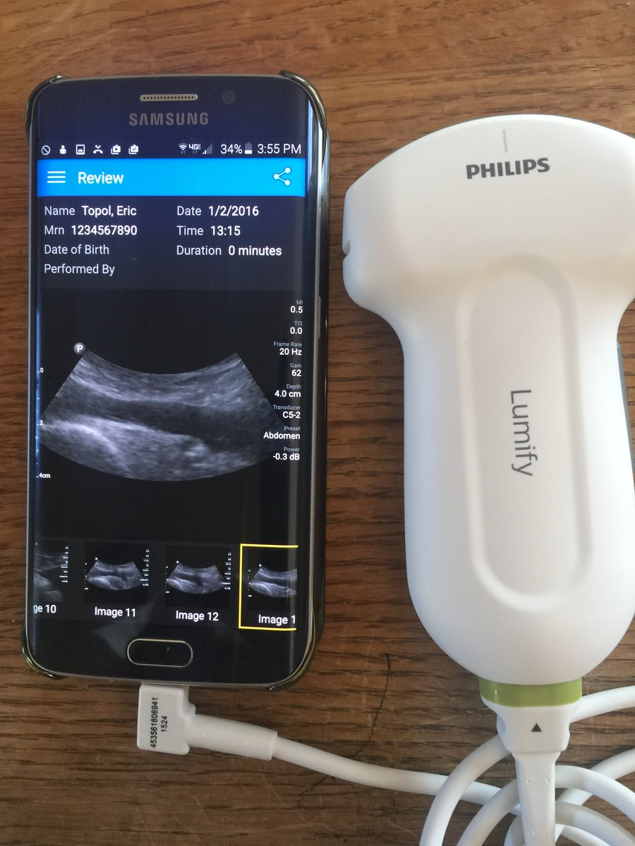 BTW Here's the 1st smartphone-ultrasound anatomical/physical head-to-toe exam :-) https://t.co/ls8jY3siSa