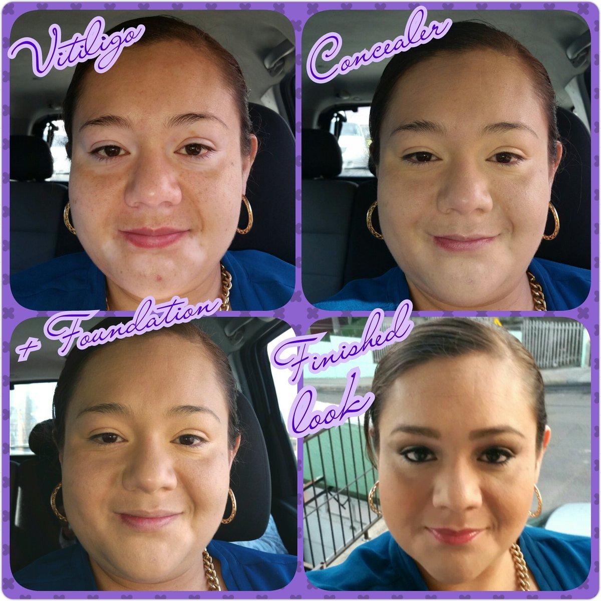 Xadani P Lucero On Twitter Vitiligo Y Sin Maquillaje Younique
