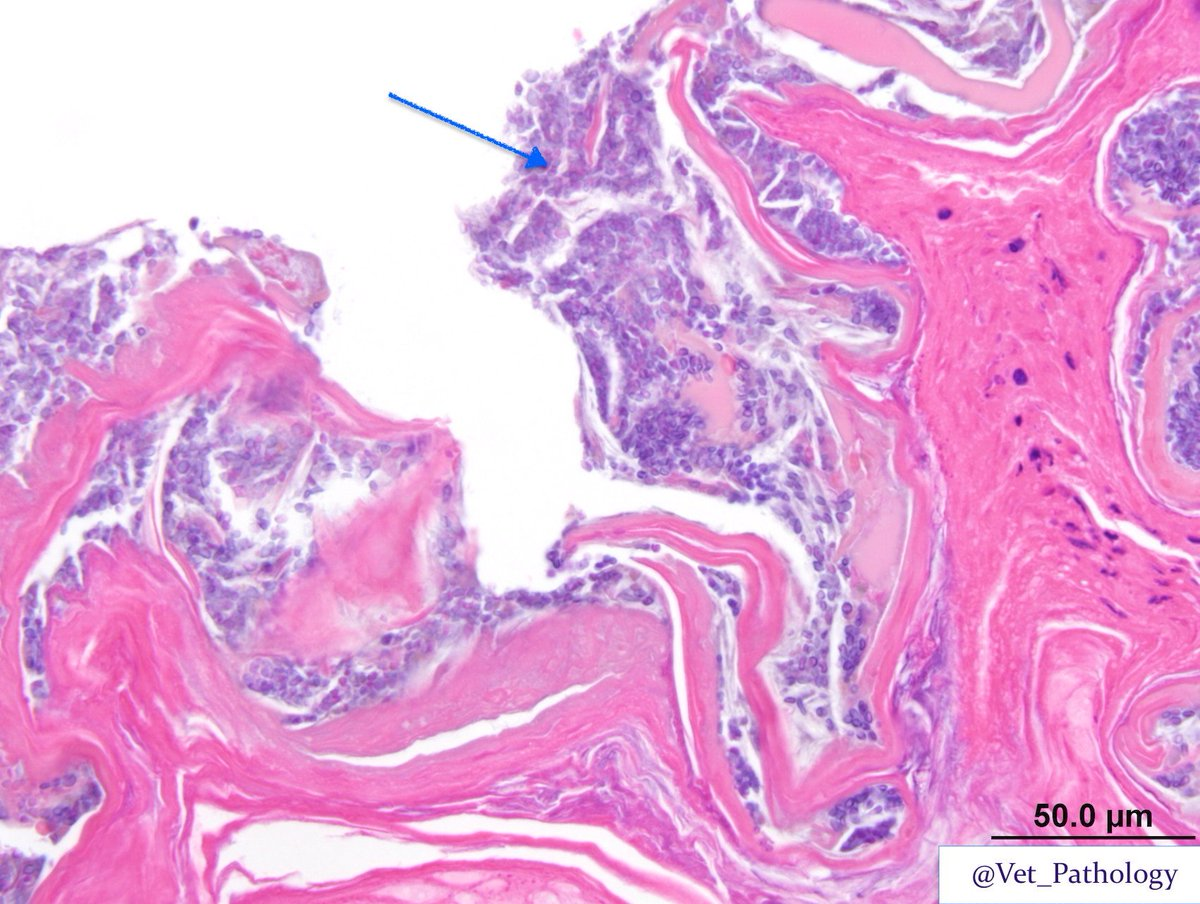 pampiniform plexus histology - photo #40