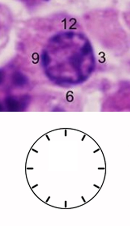 "Patrick Rush on Twitter: ""Plasma cell clock face nucleus ..."