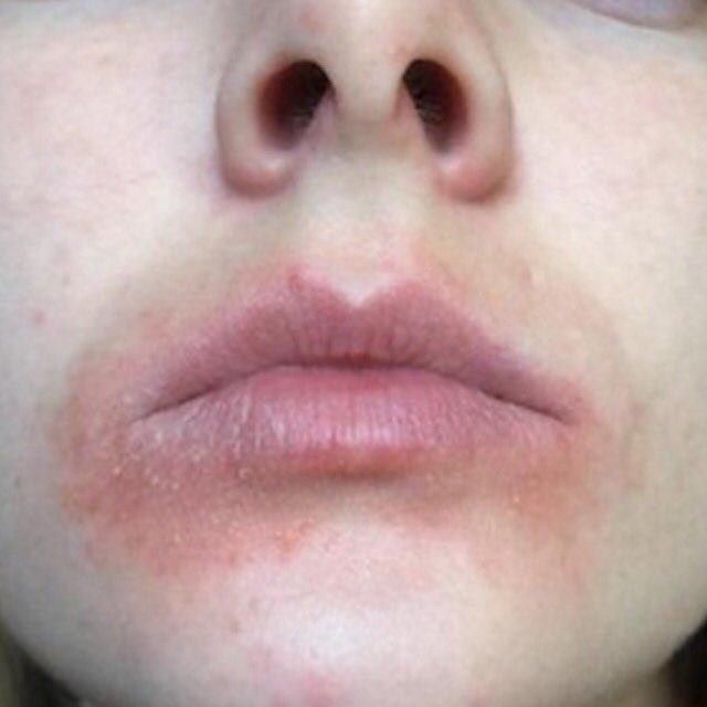 د أنور الحمادي U Tvitteri حساسية حول الفم شائعة تزداد في البرد وبلعق المنطقة باللسان علاجها بالترطيب المستمر للمزيد Https T Co Jv0zmdjw6e Https T Co Hnjczknpje
