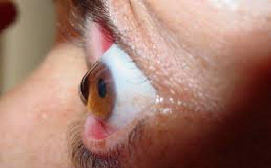 Donatori di cornea in Sri Lanka, per una buona reincarnazione