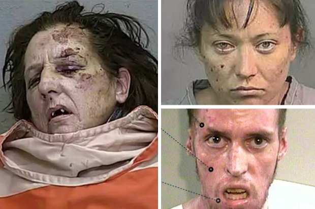 Revealed The Horrors Of Crystal Meth Most Shocking Ever