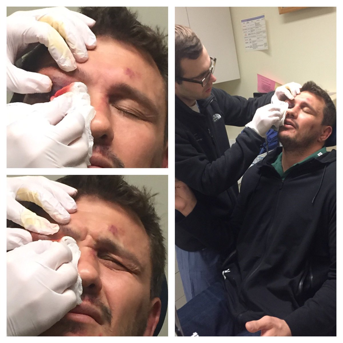 Getting my eyelid drained this morning. Was not awesome. https://t.co/LYgrEKlmHc