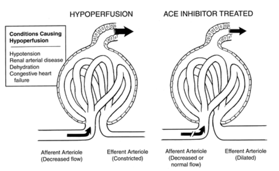 Dose Of Pa On Twitter Acei Bind Efferent Arteriole While Asa