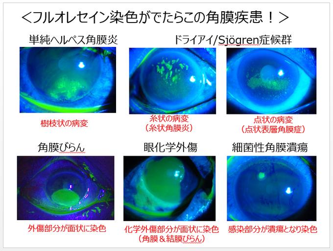 加藤先生の【2016医師国家試験眼科対策】