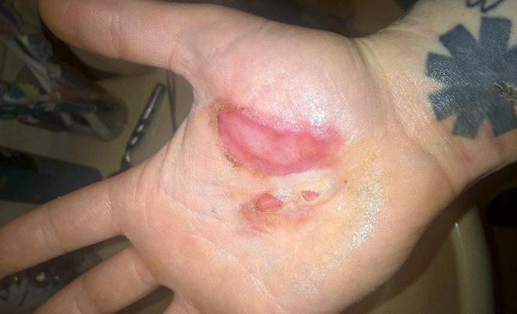 Man suffers second degree burns after vaporizer explodes in hand