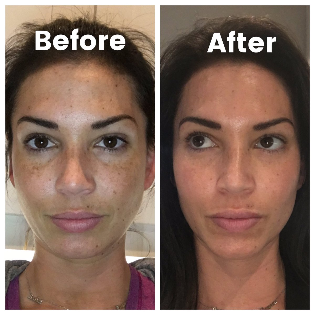 When Does Peeling Start After Photofacial?