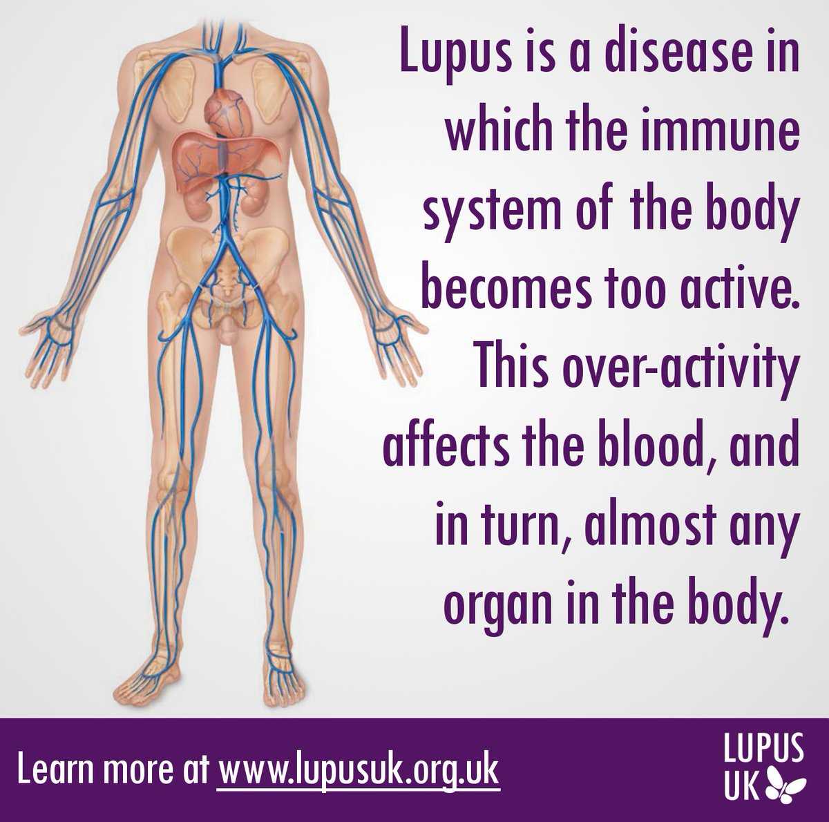 Today is #WorldLupusDay!  #WorldLupusDay Fact 1: Learn more at https://t.co/XhLZbU4c8p https://t.co/URmTm7LG4r