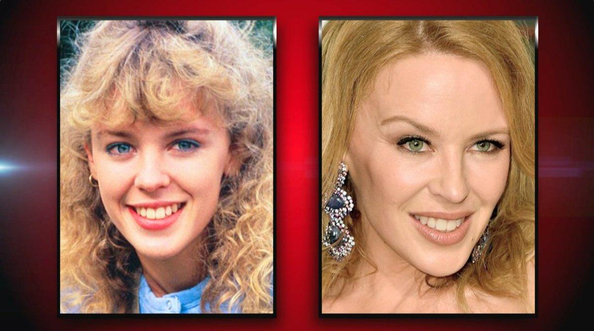 Kylie Minogue: dal successo artistico alla battaglia vinta contro il cancro