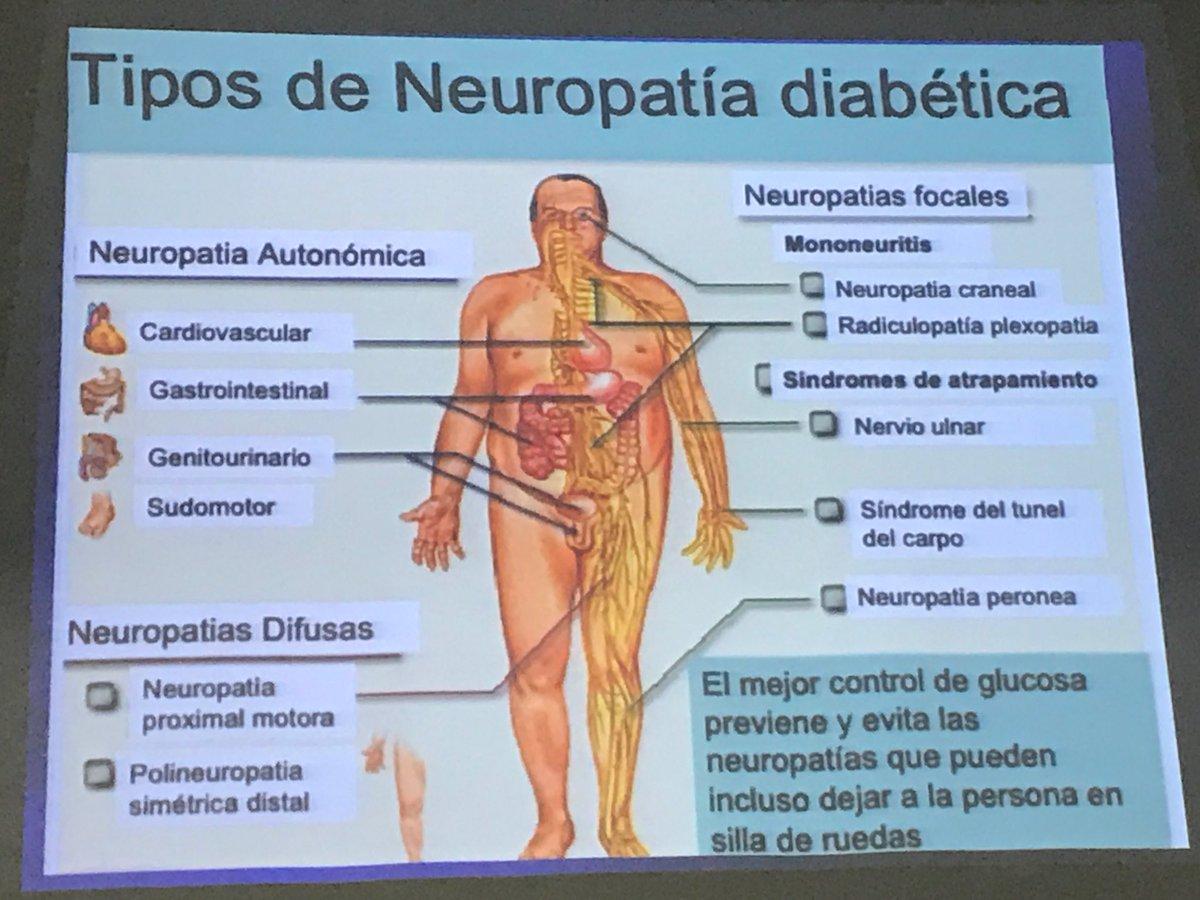 neuropatía diabetes reino unido