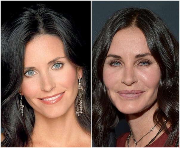 maria shriver plastic surgery
