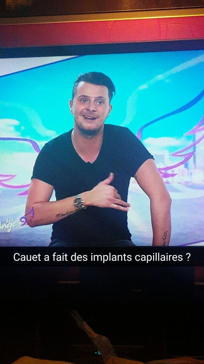 @cauetofficiel a fait des implants capillaires?  #Anges9 #NRJ12  #MadMag  #joke <br>http://pic.twitter.com/M81r95MmIE