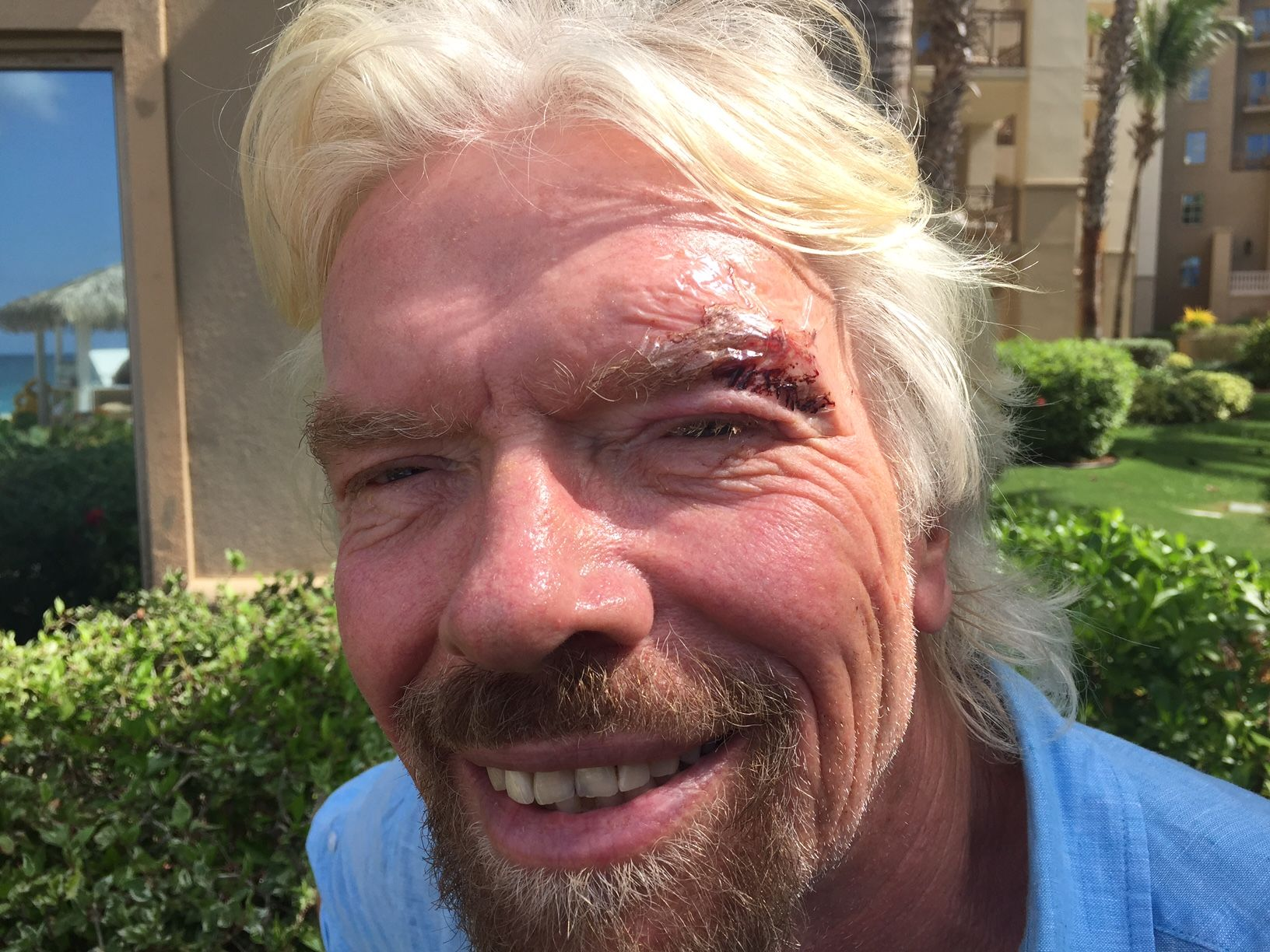 RT @richardbranson: Went into a shop to buy Joan a gift. Didn't notice the glass door... Needed 3 stitches https://t.co/fMinlLKreW https://…