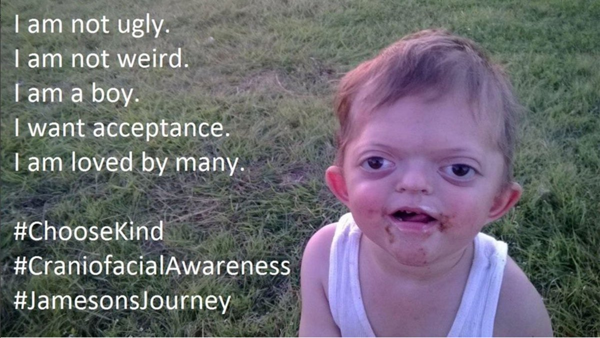 Texas mom takes on cyberbullies who turned photo of disabled son into meme