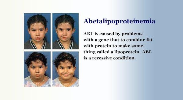 abetalipoproteinemia hashtag on Twitter