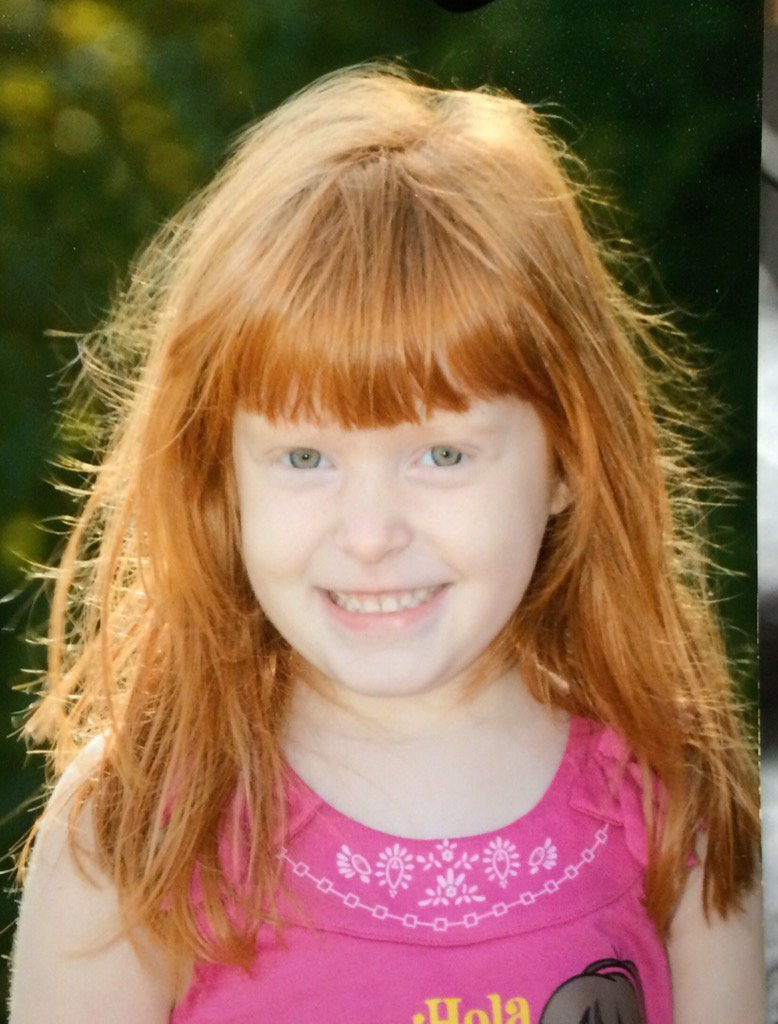 Prayers for the Kenyon family of Canton. Kaleigh died from injuries suffered when a tree limb fell on her. WCVB