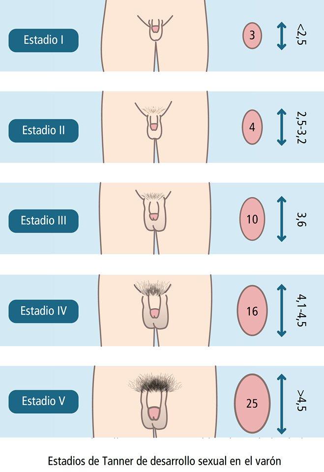 Senos en Los Hombres o Ginecomastia o Cirugía de