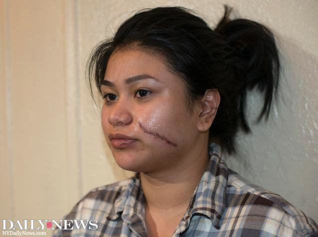 'GRATEFUL TO BE ALIVE': 20-year-old woman slashed across the face during Bronx mugging