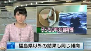 取材した事実を放送しようとした女性ディレクターが急死! 福島、癌の発症率は61倍に上昇!国立癌研究センター長! https://t.co/mLlW11mKNp https://t.co/fl282tuEt9