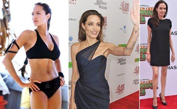 Donne USA come Angelina Jolie, Mastectomia per paura del Tumore