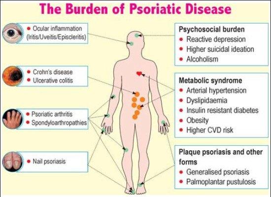 psoriasis is an autoimmune disease or not