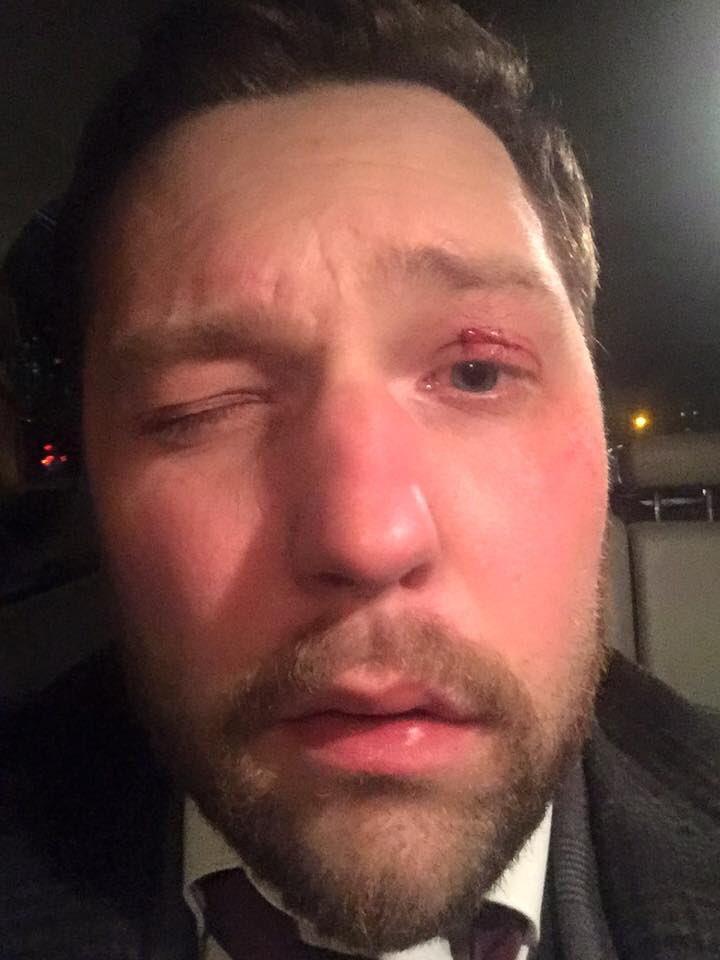 Пьяный водитель врезался в автомобиль адвоката Корбана Шевчука - Цензор.НЕТ 2862