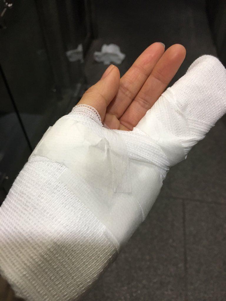 小指の骨が、折れました。 てか、裂けました。 まず台本めくれるかチェックしたよね。 https://t.co/6jp7QexjSI