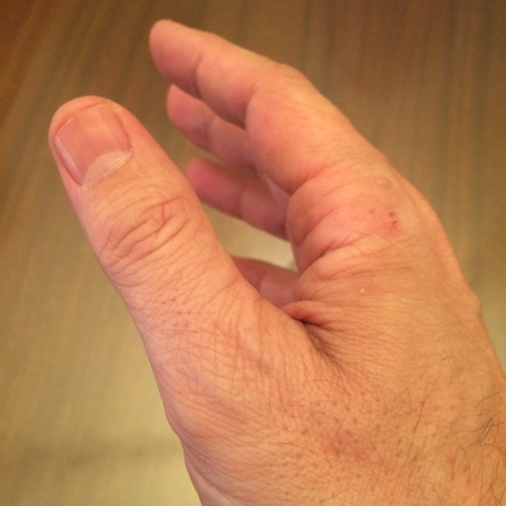 Photo of my hand before signing 58 bills into law today: https://t.co/crM19dwjNi