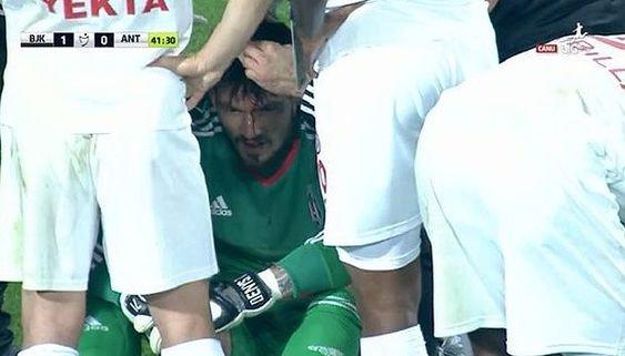Бойко доиграл матч с Антальяспором, несмотря на травму головы - изображение 2